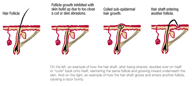 ingrown-hairs-Reducing the existed ingrown hair-depilatory waxing