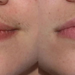 Women's Facial Hair Removal how To Remove Unsightly Facial Hair
